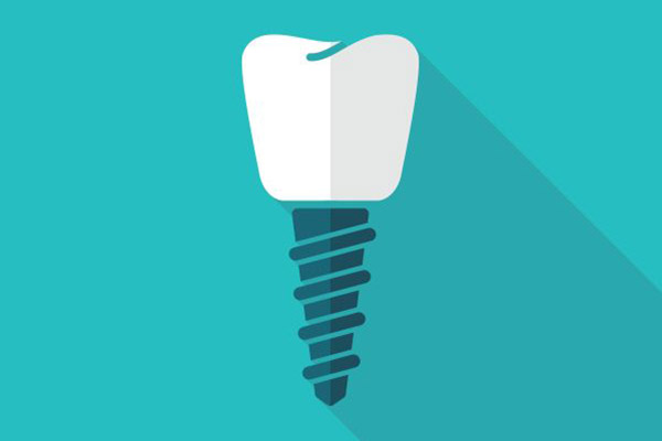 What To Expect When Getting A Dental Implant To Replace A Missing Tooth